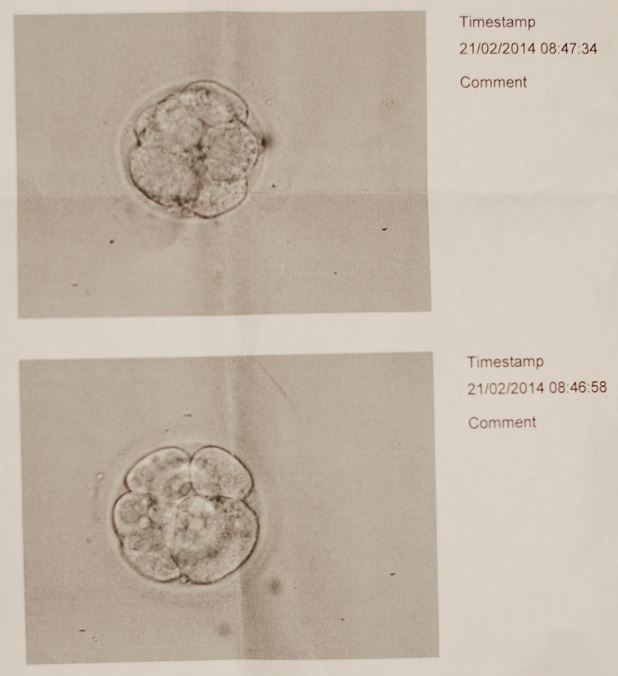 two embryos in petri dish